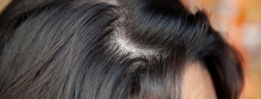 Astuces naturelles pour lutter contre les cheveux gras